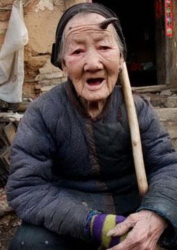 Peristiwa Langka! Wanita Cina Tumbuh Tanduk 'Setan'