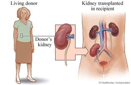 bagaimana-menjadi-donor-untuk-transplantasi-ginjal-1